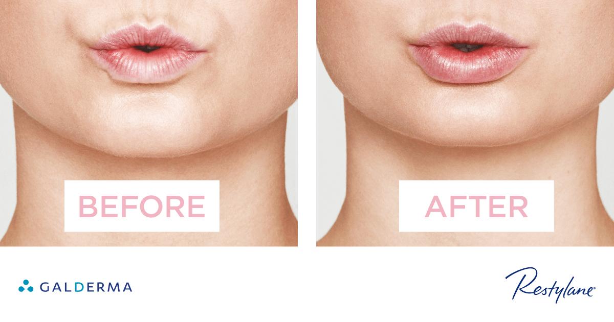 Concerns Lips Ba2